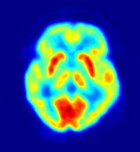 pozitronu emisijos tomograma