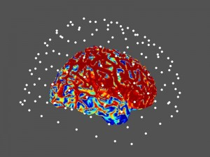 Magnetoencefalograma